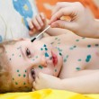 Little child with Varicella zoster virus illness. Therapy of green paint or brilliant green dye. — Stock Photo #10949697