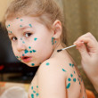 Little child with Varicella zoster virus illness. Therapy of green paint or brilliant green dye. — Stock Photo #10949700