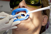Visit to the dentist. — Stock Photo