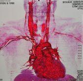 Coronary angiography — Stock Photo