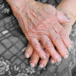 Stock Photo: Hands of old wom- 85 years age
