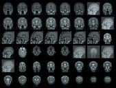 MRI of human brain — Stock Photo