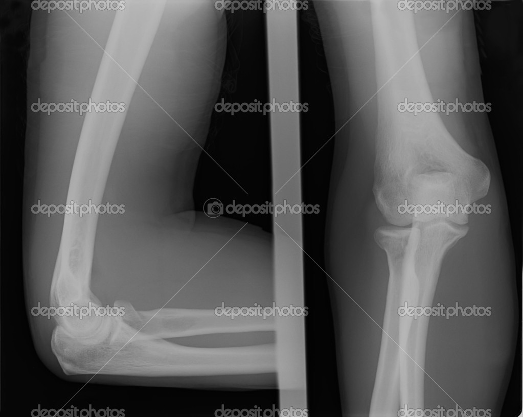 X Ray Broken Elbow Two X-ray images of broken