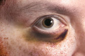 Black Eye — Stock Photo