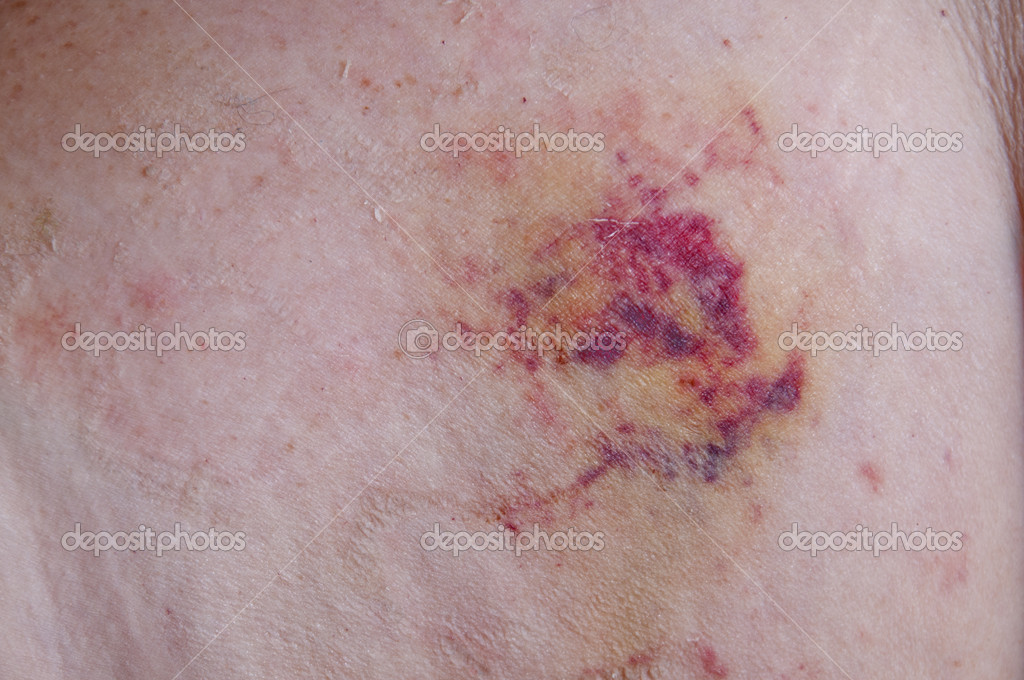 Black and blue bruise at a medical IV site — Stock Photo #12250291