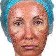 Cosmetology. Skin condition after chemical peeling TCA. person full face — Stock Photo #10930362