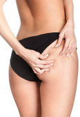 Cellulite — Stock Photo