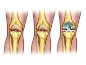 замена коленного сустава — Стоковое фото