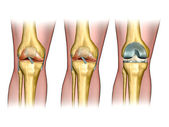 Knee replacement — 图库照片