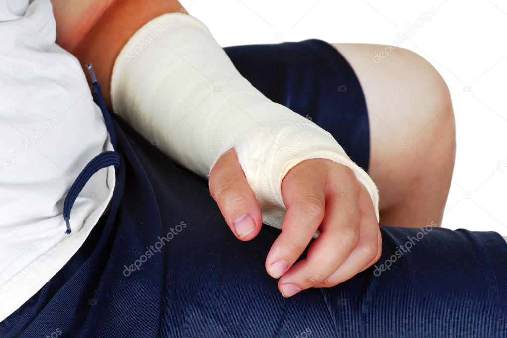 Broken hand in plaster cast with bandages, red, swollen fingers after