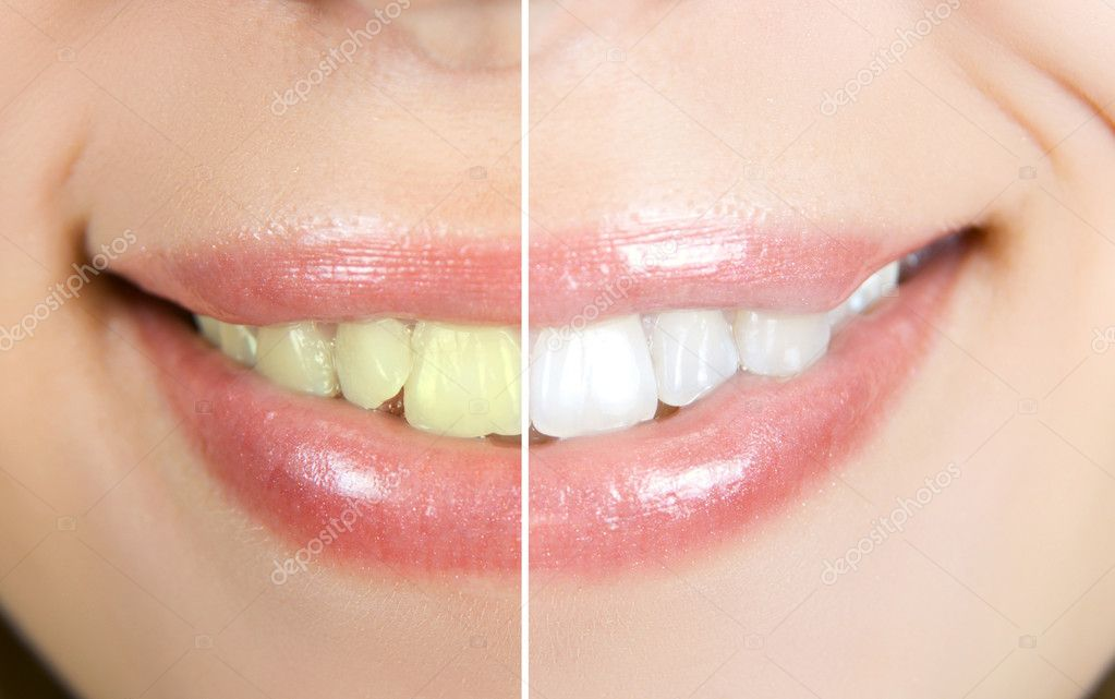 Woman teeth before and after whitening — Stock Photo #12350284