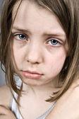 Sad Blue Eyed Child — Stock Photo