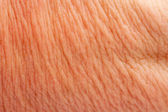 Human skin as a background — Stock Photo