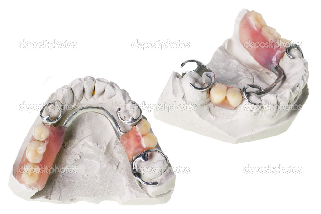 Plaster cast of  teeth and dentures, which is made in this mold. Isolated macro. Selective focus — Stock Photo #11754248
