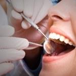 Dental checkup — Stock Photo