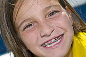 Close up Girl With Braces — Stock Photo