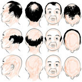 Asian Male Baldness Pattern — Stock Vector