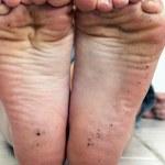 Dirty Feet (2) — Stock Photo #10832272