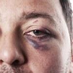 черные глаза травмы несчастного случая насилия изолированные — Стоковое фото