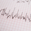 Stock Photo: ECG print out