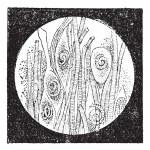 Постер, плакат: Trichinella or trichina worms vintage engraving