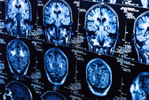 A group of CAT scans of the human brain — Stock Photo