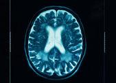 Sharp ct scan of the human brain — Stock Photo