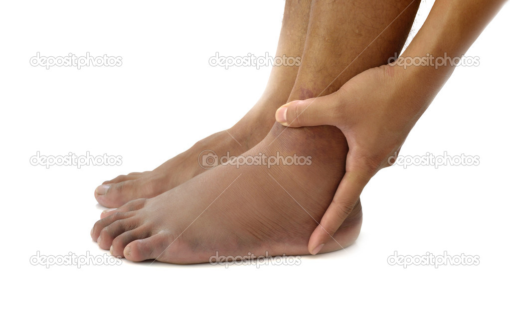 Left ankle sprain swelling from trauma on white background. — Stock Photo #11154442