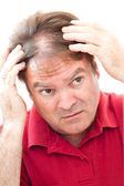 Man Worried About Balding — Stock Photo