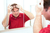 Thinning Hair in Middle Age — Stock Photo