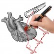 Stock Photo: Doctor drawing heart Attack and heart beats cardiogram