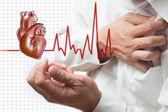 Ataque al corazón y el corazón late fondo cardiograma — Foto de Stock