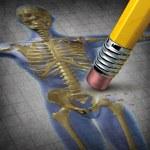 Human Osteoporosis — Stock Photo