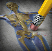 Osteoporosis humana — Foto de Stock