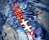 人体背部疾病 — 图库照片