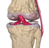 Osteoarthritis : Knee joint with ligaments and cartilages — Photo