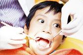 Oral kavite incelenmesi — Stok fotoğraf