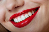 Perfect smile healthy — Stock Photo