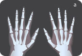 X-ray image — Stock Photo