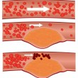 Cholesterol plaque in artery (atherosclerosis) — Stock Vector