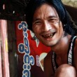 Man with black teeth smile — ストック写真