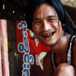 Man with black teeth smile — Stock fotografie