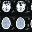Magnetic resonance images — 图库照片
