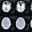 Foto Stock: Magnetic resonance images