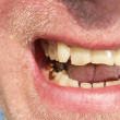 Gold teeth - Stock Photo
