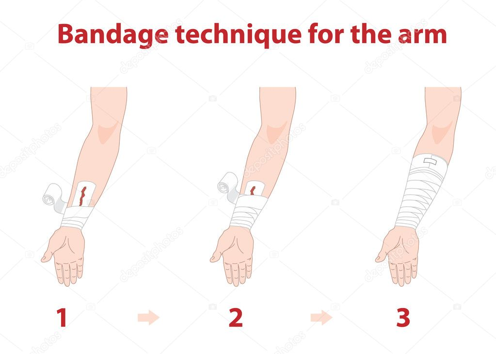 First Aid Bandaging Techniques http://gophoto.us/key/first%20aid%20bandaging%20techniques