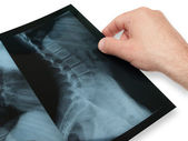 X- ray — Stock Photo