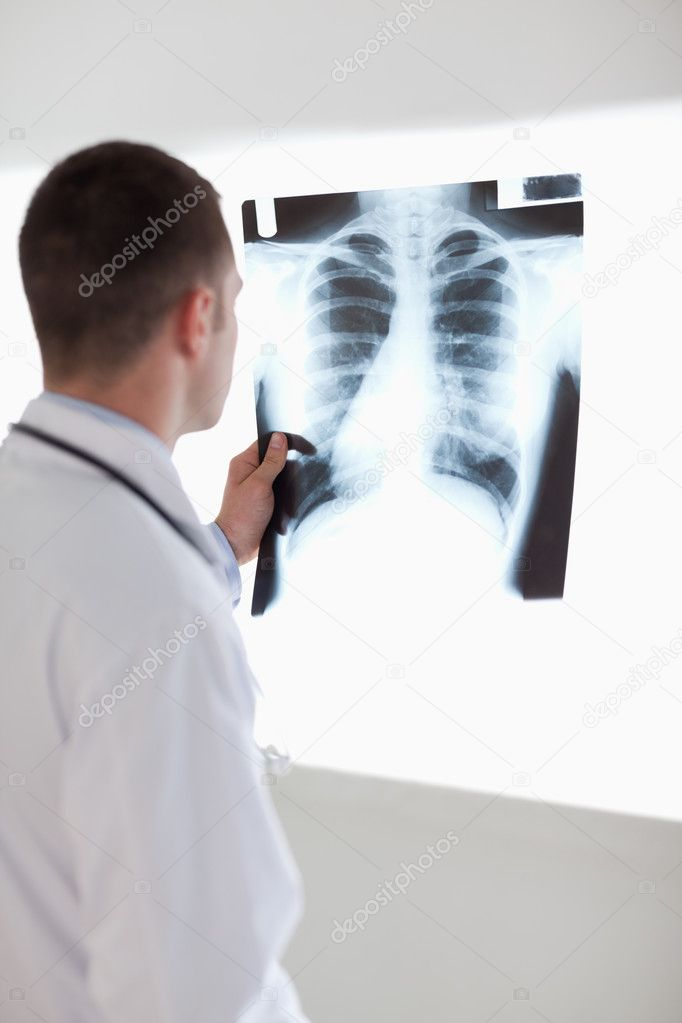 Doctor holding x-ray photograph against light — Stock Photo #11195548