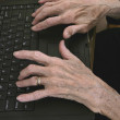 Arthritic Hands - Stockfoto