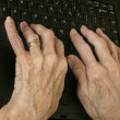 Arthritic Hands - Foto Stock
